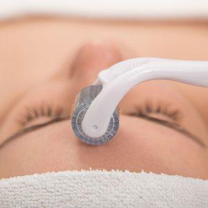 dermaroller /tratamentos faciais