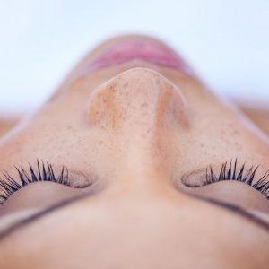 melasma /tratamentos faciais