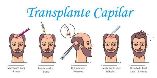 transplante capilar cirurgia