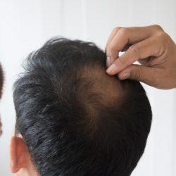alopecias /meso e mmp